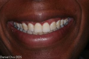 Esthetic Crown Lengthening 2a