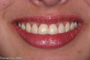 Esthetic Crown Lengthening 4a