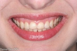 Esthetic Crown Lengthening 4b