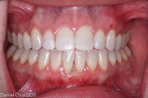 Know how graft you a do failed gum if Gum Graft: