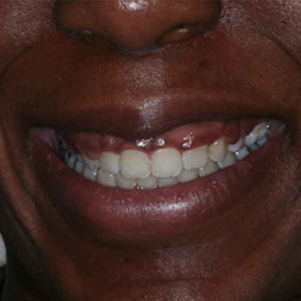 Before: Esthetic Crown Lengthening