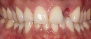 set of teeth with missing incisor
