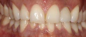 dental implants to fix broken teeth