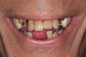 All-on-4 implant denture patient before