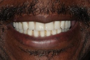 All-on-4 implant denture patient after