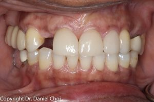 Dental implant before-after