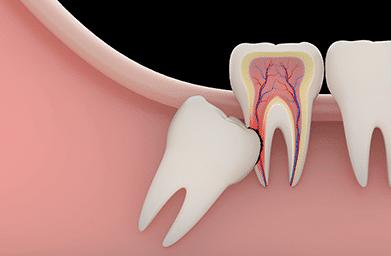 All On 4,Snap on Dentures, Wisdom Teeth, Gum Disease ...