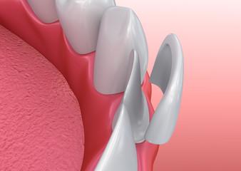 Dental Veneer McKinney