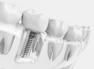 Plano Dental Implants
