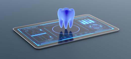 Dallas Implants