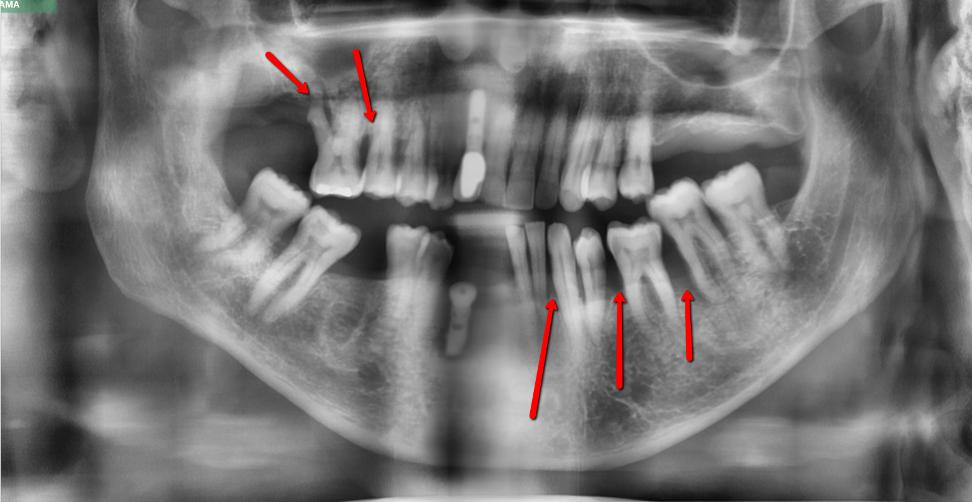 Implant Loss