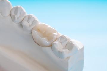 Dental Crown McKinney