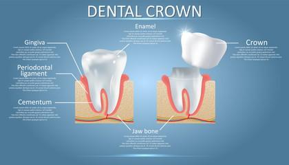 Dental Crown Plano