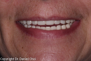 Snap in denture after