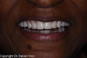 Implant Dentures Plano