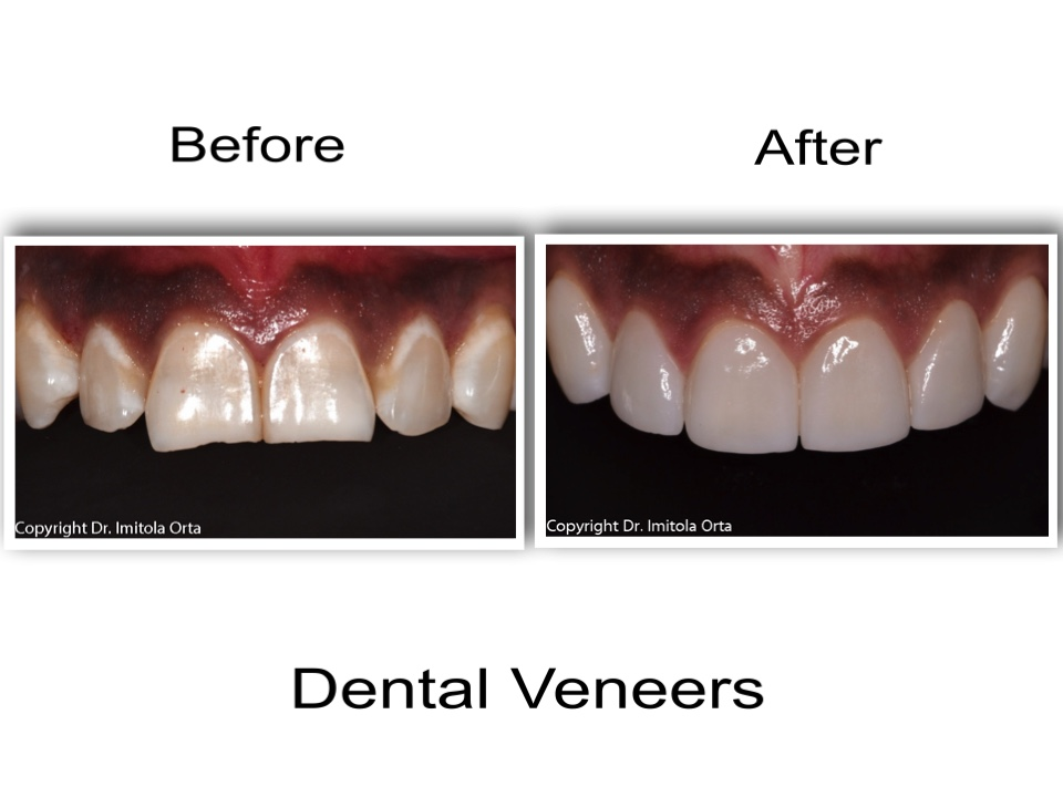 Dental Veneers Plano