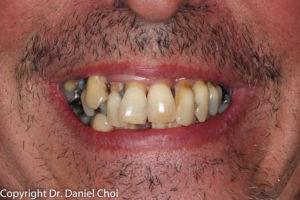 Implant Dentures McKinney