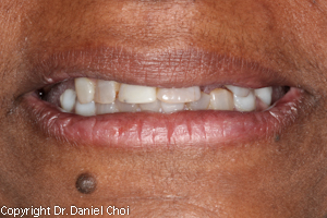 Snap in denture before