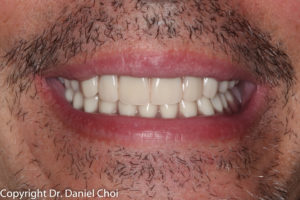 Denture Implants McKinney