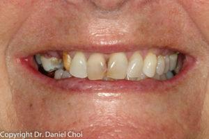 Snap in Dentures Before