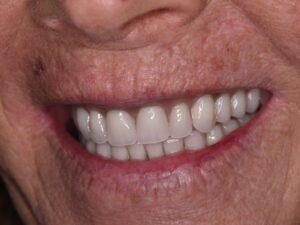 Implant Dentures After