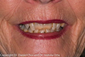 Denture Implants Before