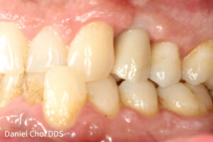 After IMPLANT