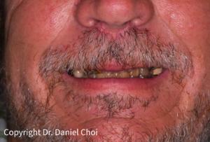 Implant Dentures Before